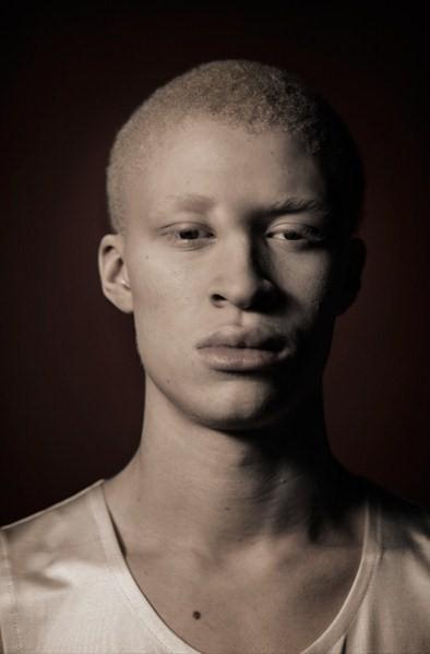 African American Albino Model http://euphorialand.wordpress.com/2009/10/08/albino-male-model-shaun-ross/